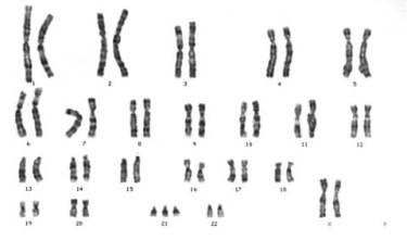 chromosome mutation