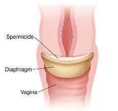 Diaphragm.jpg